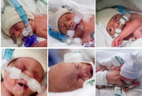 ikrek fogyás születés után)