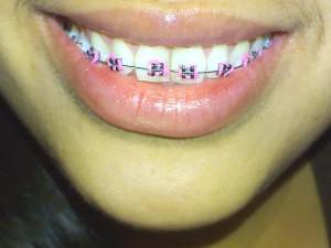 színes fogszabályzók 1