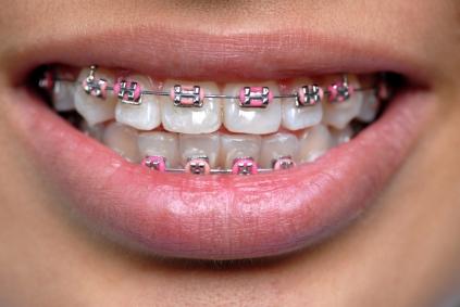 színes fogszabályzók 3