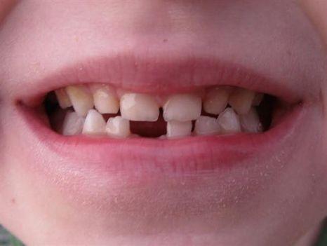 szájápolás gyerekkorban 2