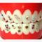fogékszer 2