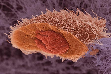 daganatsejt