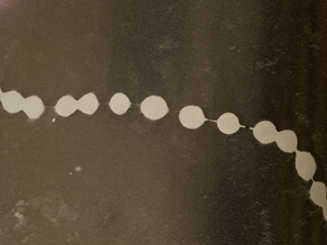 Streptococcus sejtjei