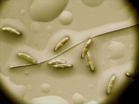 Élő kovamoszatok
