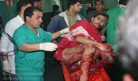 gaza sebesült