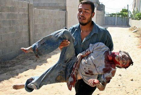 gaza sebesült mentése