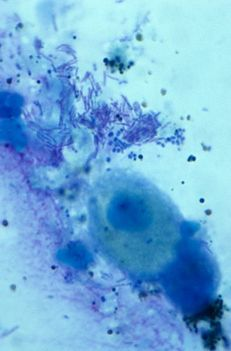 A D-vitamin szerepe a TBC kezelésében