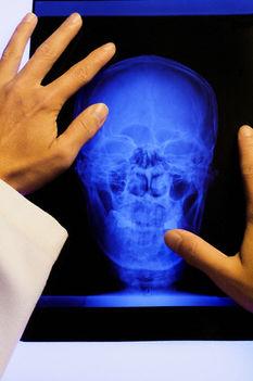 B12 vitamin hiány vs. agyzsugorodás?