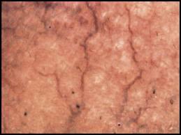A bőr mikroszkópos vizsgálata