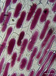 Plazmolizált sejtek