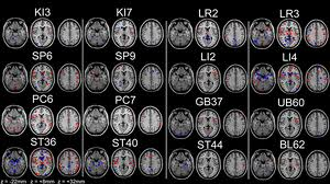 Akupunktúra az agyban