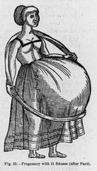 11 magzatos terhesség
