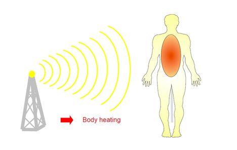 Az elektromágneses sugárzás felmelegíti a szervezetünket