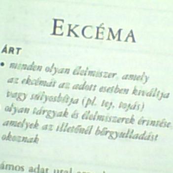 ekcéma