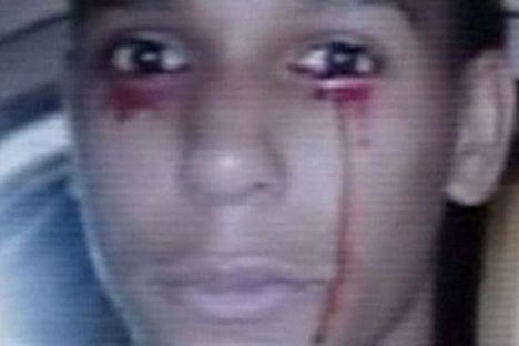 a vérző szemű fiú-CNN