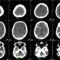 posztkontrasztos koponya CT