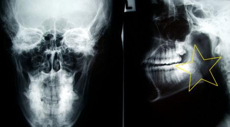 röntgen - állkapocs