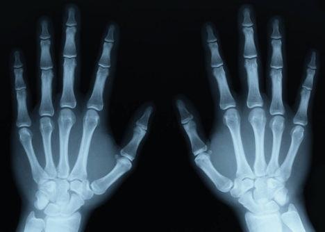 röntgen - hadd lássam a kezeket!