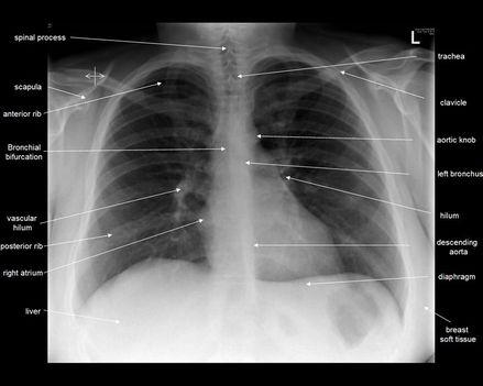 röntgen - mellkas röntgen 1