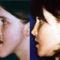 plasztikai sebészet - műtét előtt, műtét után 1