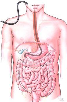 gyomortükrözés vizsgálat