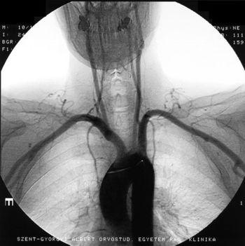 aorta angiograf