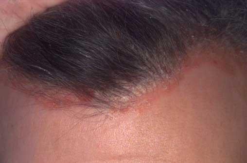 hogyan lehet gyógyítani a fejbőr pikkelysömörét