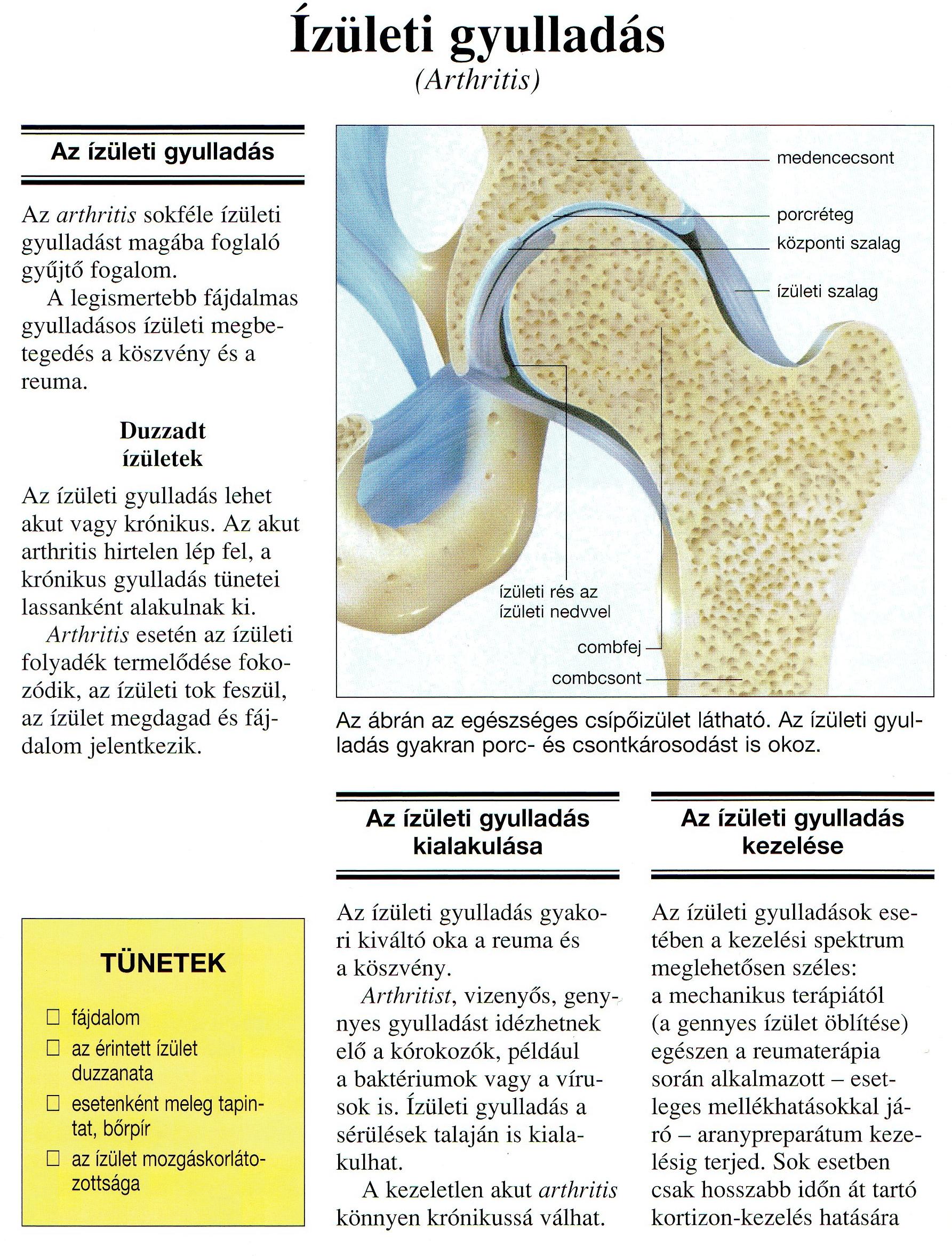 gennyes ízületi betegségek