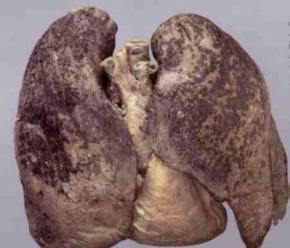 Cigarettázó ember tüdeje