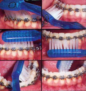 Fogtisztítás fogszabályzóval