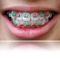 Színes fogszabályzó