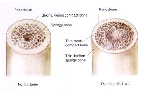 A csont belül