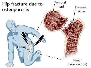 Csonttörésveszély