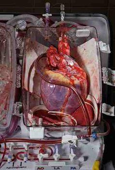 átültetésre váró szív