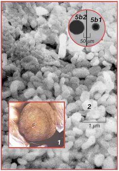ureaplasmaurealyticum