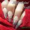 My Nails2