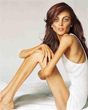 anorexia-lindsay-lohan