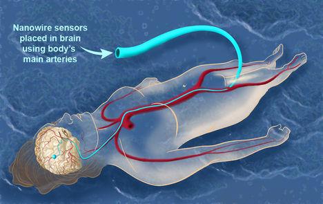 NSF-BrainNanowire