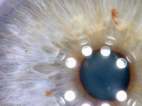 Emberi szem mikroszkóp alatt 001