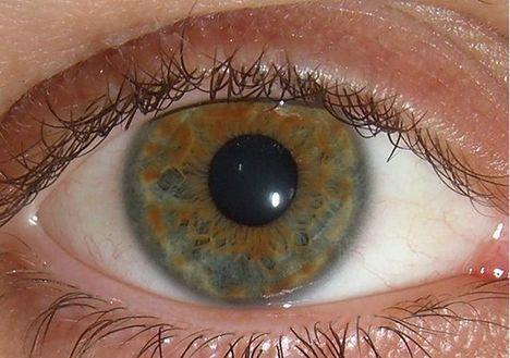 Emberi szem mikroszkóp alatt 003
