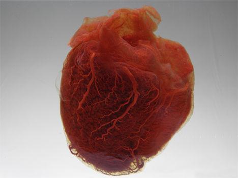 Emberi szív 4