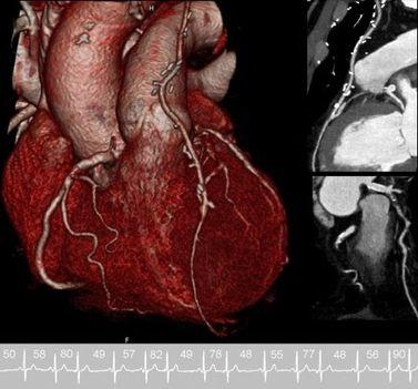 szív 2