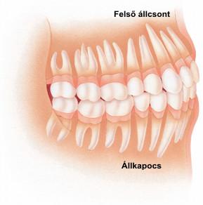 Fogfejlődés, fogászat, szájesztétika, fog, anatómia, egészséges, beteg 7