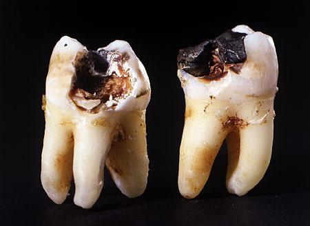 Szuvas fogak