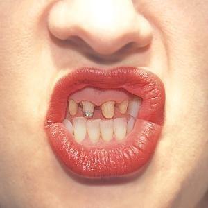 Rossz fogak 1