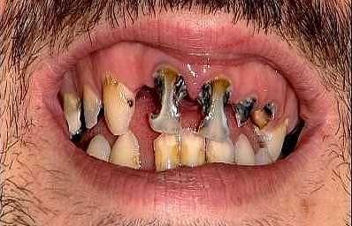Rossz fogak 6