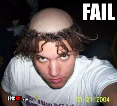 epic-fail-epic-hairstyle-fail-bald-scalp-dreds