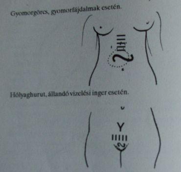 Gyomorgörcs-Hólyag