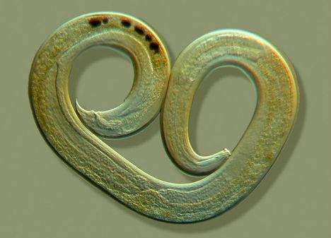 Fonalféreg